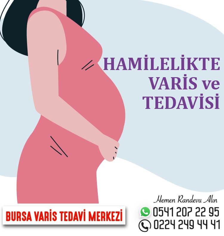 hamilelikte-varis-01.jpg